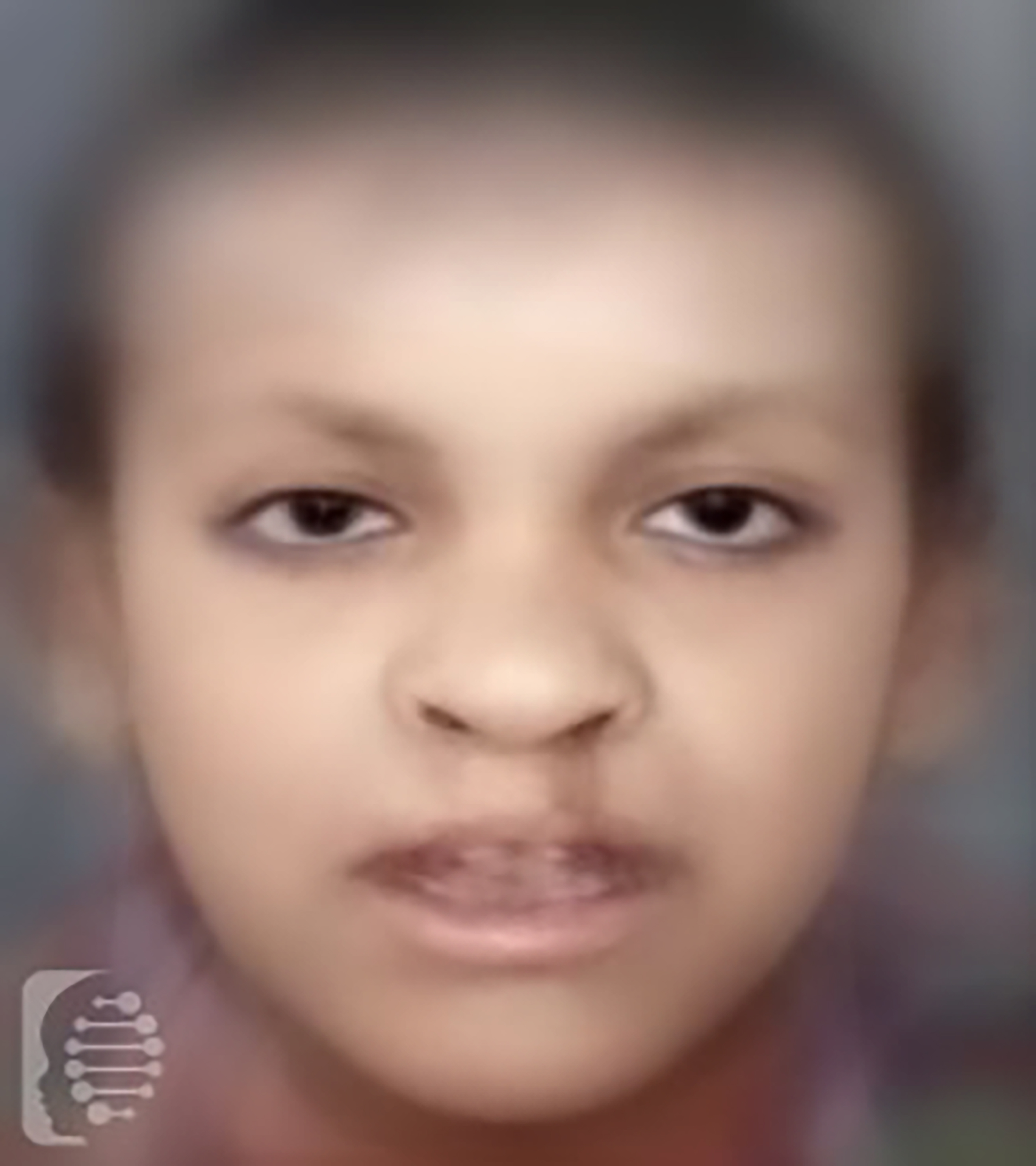 Cleft Lip/Palate-Ectodermal Dysplasia Syndrome OMIM# 225060